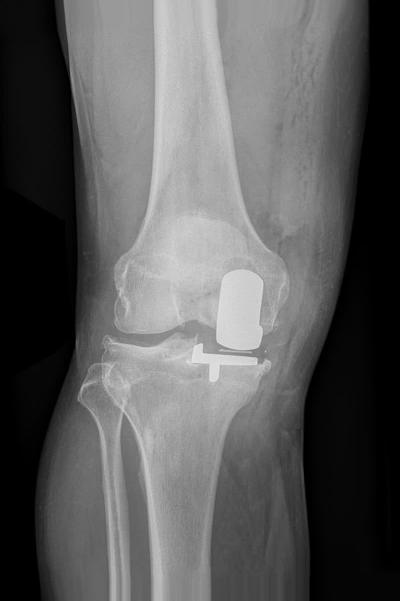 Mr Miles Callahan | Oxford Partial Knee Replacement